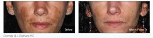 Enlever les Tâches Brunes ou Vieillesses - Laser Picosure - Medecine Esthétique Paris -Phoenix Esthetic