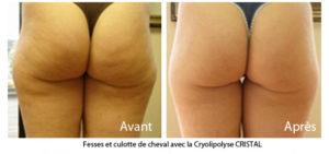 Traitement Anti Cellulite - Cryolipolyse Paris -Médecine Esthétique Paris 8 - Phoenix Esthetic