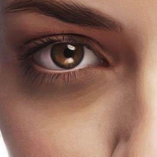 Poches sous les yeux - Phoenix Esthetic