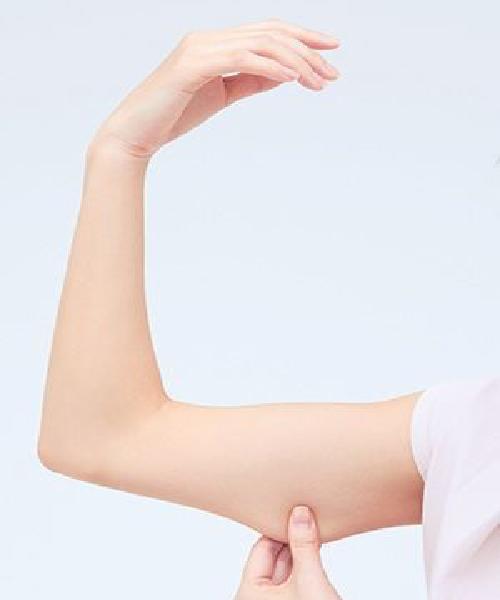 Chirurgie esthétique - Lifting des bras - Phoenix Esthetic