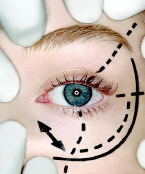 Chirurgie esthétique - Blépharoplastie – chirurgie des paupières - Phoenix Esthetic