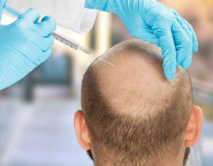 Mésotherapie Cheveux à Paris - greffe de cheveux paris - traitement alopecie - Phoenix Esthétic