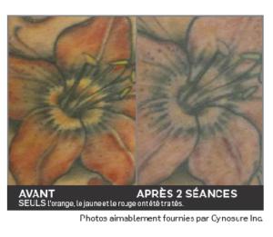 Détatouage Picosure Paris - Laser Esthétique Paris - Médecine Esthétique - Phoenix Esthétic