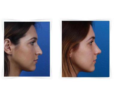 Rhinoplastie Paris photo avant après - Chirurgie Esthétique du nez - Phoenix Esthetic