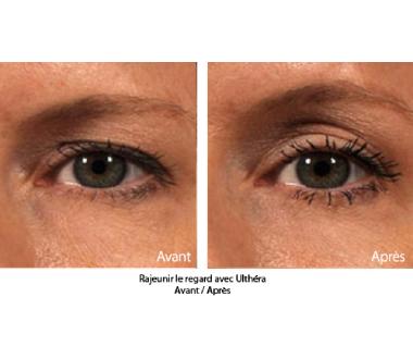 Médecine esthétique - Ulthéra® : lifting du visage & décolleté par ultrasons - Phoenix Esthetic