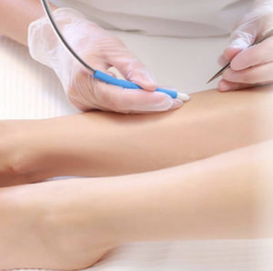 Apilus - Epilation définitive Paris - Phoenix Esthetic