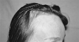 Greffe de Cheveux FUE à Paris Photo avant après - Sans Cicatrices - Phoenix Esthetic