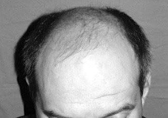 Chirurgie capillaire - Greffe de cheveux FUE à Paris : soigner votre calvitie grâce aux implants capillaires - Phoenix Esthetic