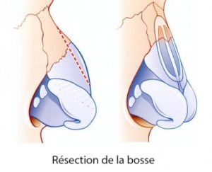 Rhinoplastie Paris photo - Chirurgie Esthétique du nez - Phoenix Esthetic