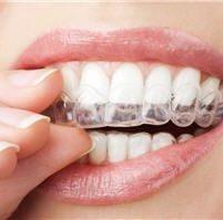 Orthodontie par aligneurs invisibles - Phoenix Esthetic Paris