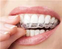 Orthodontie par aligneurs invisibles - Phoenix Esthetic Paris
