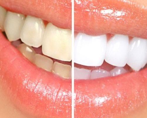 Dents jaunes - Phoenix Esthetic
