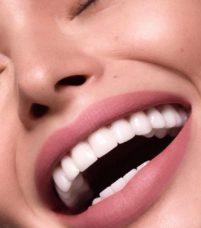 Chirurgie Dentaire - Implants dentaires - Phoenix Esthetic