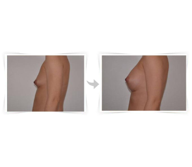 Augmentation Mammaire Paris - Chirurgie Esthetique Paris - Phoenix Esthetic