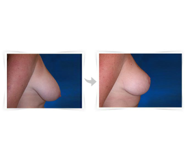 Reduction Mammaire à Paris - Chirurgie Esthetique Paris - Phoenix Esthetic