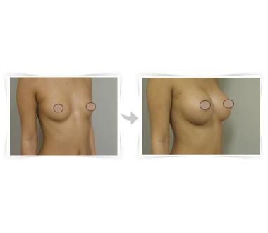 Chirurgie esthétique - Augmentation mammaire - Phoenix Esthetic