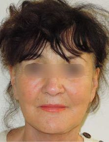 Lifting facial à Paris photo avant après - Chirurgie Esthetique Paris - Phoenix Esthetic