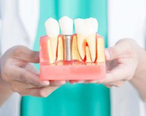 Implant Dentaire à Paris - Chirurgie Dentaire - Phoenix Esthetic