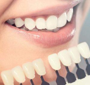 Blanchiment Dentaire à Paris - Prix - Phoenix Esthetic