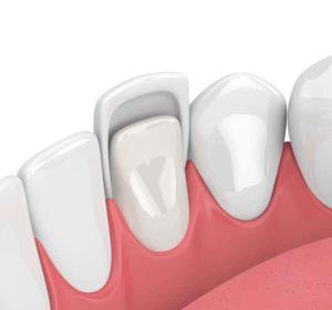 Facette Dentaire Paris - Esthétique Dentaire à Paris - Phoenix Esthetic