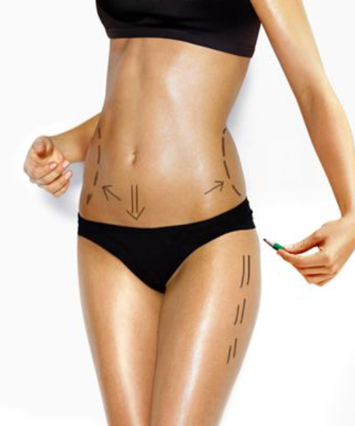 Chirurgie esthétique - Liposuccion - Phoenix Esthetic