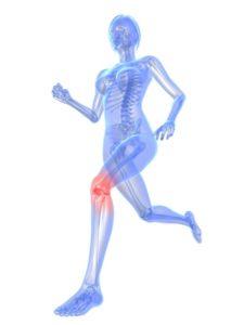 Peut on faire du sport après injection acide hyaluronique ? Médecine Esthétique Paris - Phoenix Esthetic
