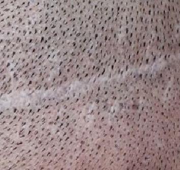 Médecine esthétique - La dermopigmentation correctrice - Phoenix Esthetic