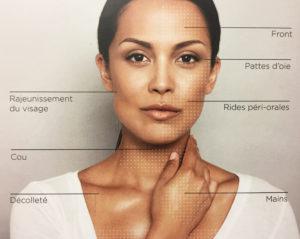 Skinboosters - Traitement Acide Hyaluronique - Médecine Esthétique Paris - Phoenix Esthetic