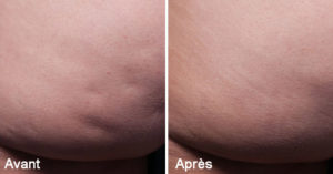 Traitement Anti Cellulite - Cellfina Paris - Cryolipolyse Paris -Médecine Esthétique Paris 8 - Phoenix Esthetic