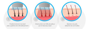 Epilation Définitive Paris : Cynosure - Candela - Phoenix Esthetic