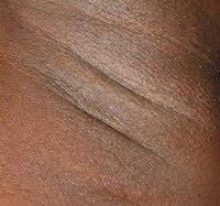 Épilation définitive - Épilation laser peaux noires - Phoenix Esthetic