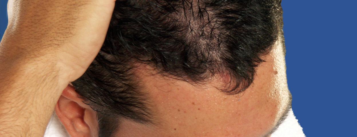 Après une greffe de cheveux vous avez un manque de densité ? - Après une greffe de cheveux vous avez un manque de densité ? - Phoenix Esthetic
