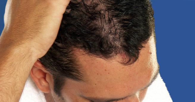 Manque de densité après une greffe de cheveux, que faire ? - Manque de densité après une greffe de cheveux, que faire ? - Phoenix Esthetic