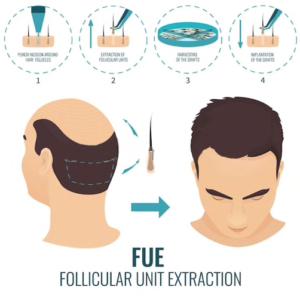 Greffe de Cheveux FUE Paris - Calvitie, alopécie androgénique qu'est ce que c'est ?