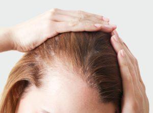 Alopécie Féminine : Comment la soigner ? Perte de cheveux chez la femme - Phoenix Esthetic