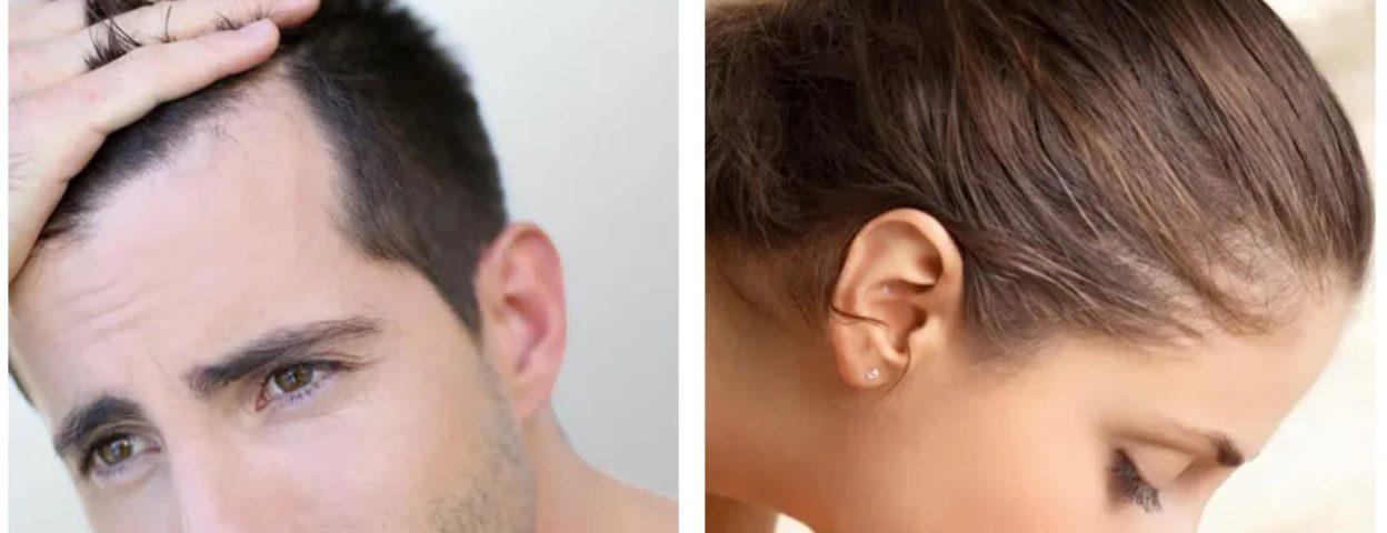 Quand s'inquiéter de la perte de cheveux ? - Quand s'inquiéter de la perte de cheveux ? - Phoenix Esthetic