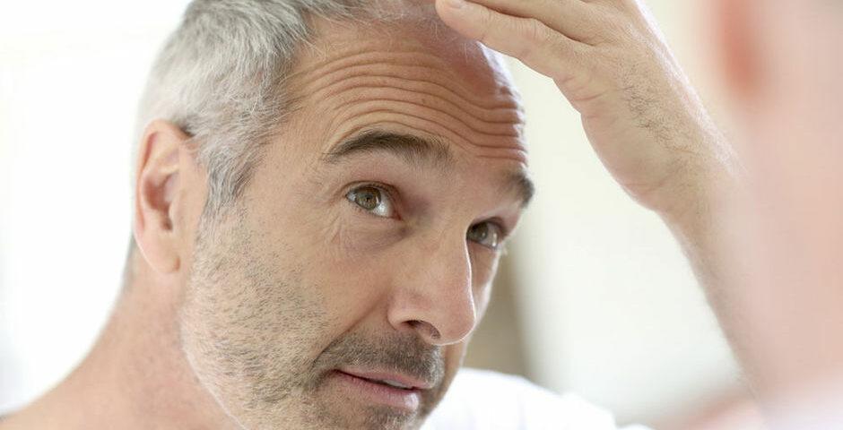 Quel âge faut-il avoir pour faire une greffe de cheveux ? - Quel âge faut-il avoir pour faire une greffe de cheveux ? - Phoenix Esthetic