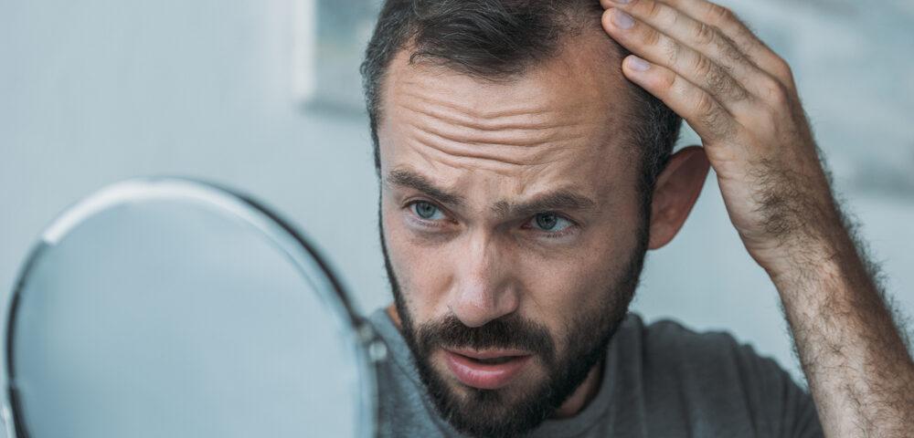 Comment stopper la chute de cheveux chez les hommes ? - Comment stopper la chute de cheveux chez les hommes ? - Phoenix Esthetic